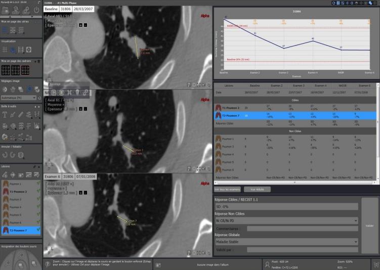 """Myrian XL Onco """"Революционное решение для точного и эффективного онкологического наблюдения"""