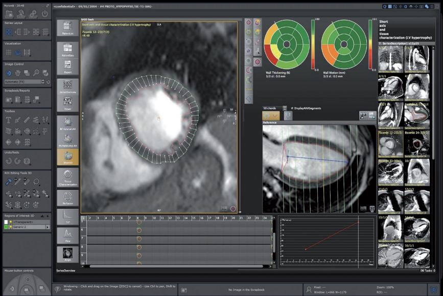 Приложение для сердечно-сосудистого анализа МР изображений